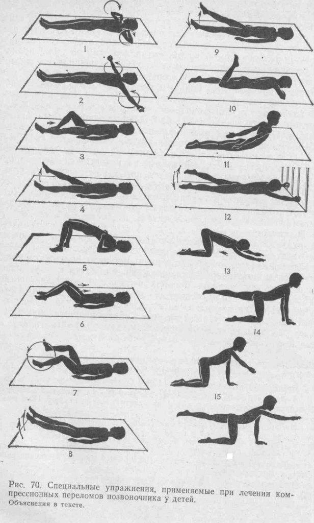Что делать, если сорвал или потянул спину, надорвал поясницу, как лечить в домашних условиях, симптомы срыва и другие нюансы