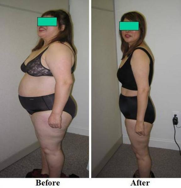Почему нельзя голодать для похудения