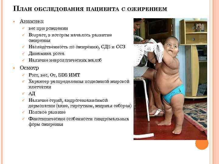 Ожирение 1, 2, 3 и 4-ой степени у детей: классификация, симптоматика, фото