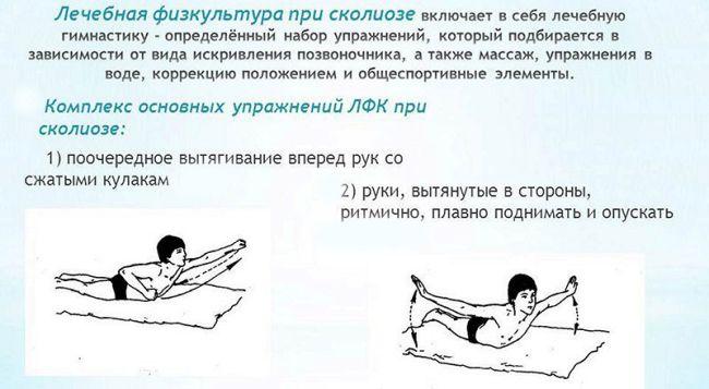 S образный сколиоз, лучшие упражнения при s образном сколиозе