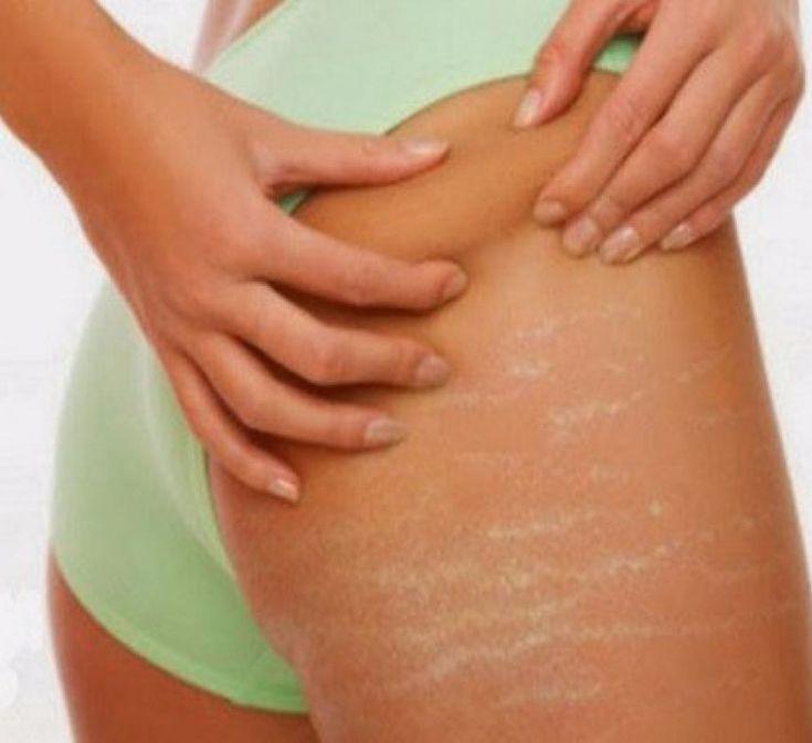 Советует косметолог: как избавиться от растяжек на теле?