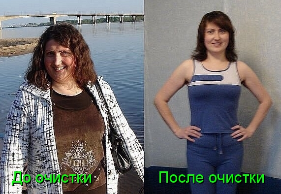 До и после 21 дня на голоде: личный опыт 47летней зожницы | plastika-info.ru