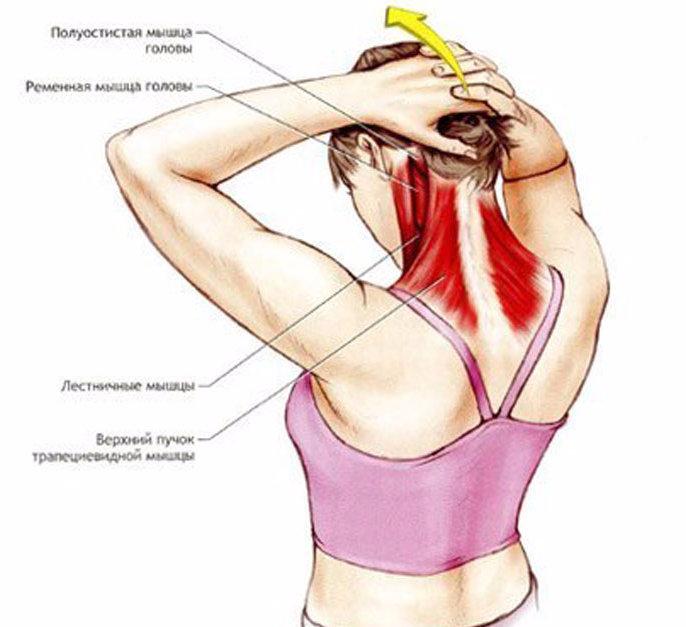 Боль в голове и шее: причины, симптомы, профилактика и лечение