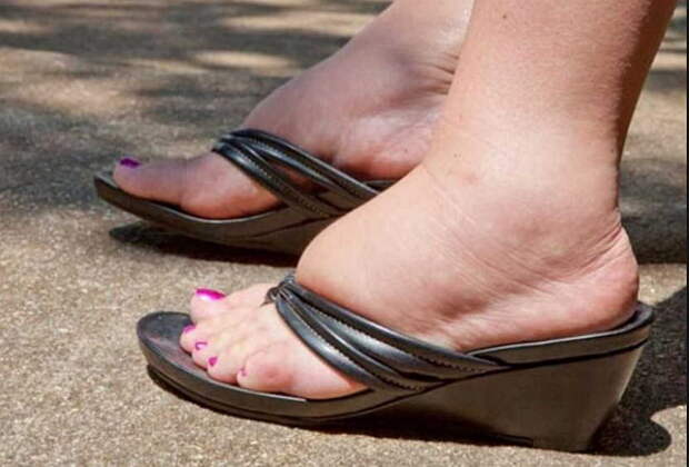 Отек ног в жару: причины почему летом отекают и что делать?
