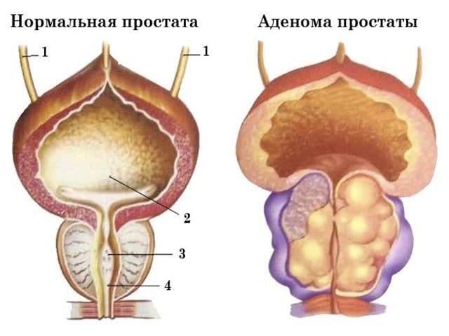 Лечение простатита и аденомы предстательной железы: как лечить хроническую форму, а также что делать при проявлении симптомов заболевания простаты