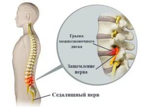 Как диагностировать и лечить защемление нерва в грудном отделе?