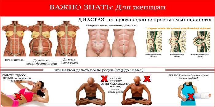 Упражнения при диастазе прямых мышц живота