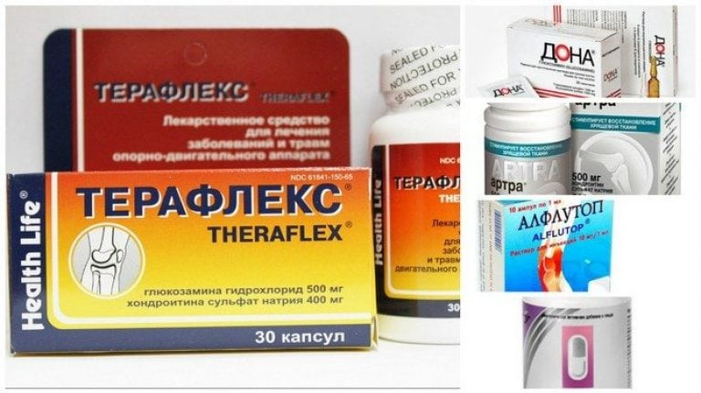 Список хондропротекторов для суставов нового поколения и отзывы о препаратах