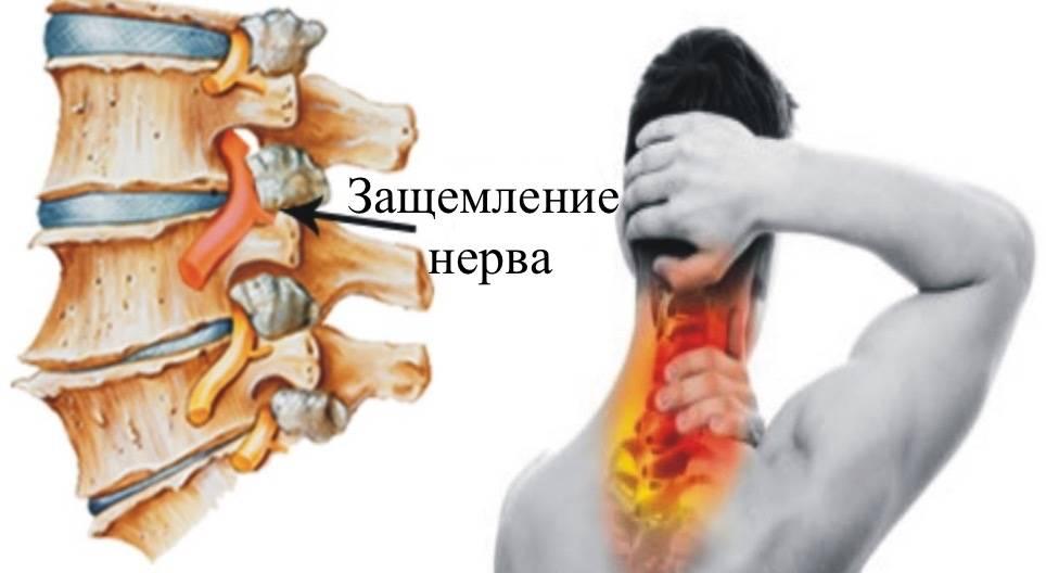 Защемление нерва в грудном отделе позвоночника: симптомы и что делать