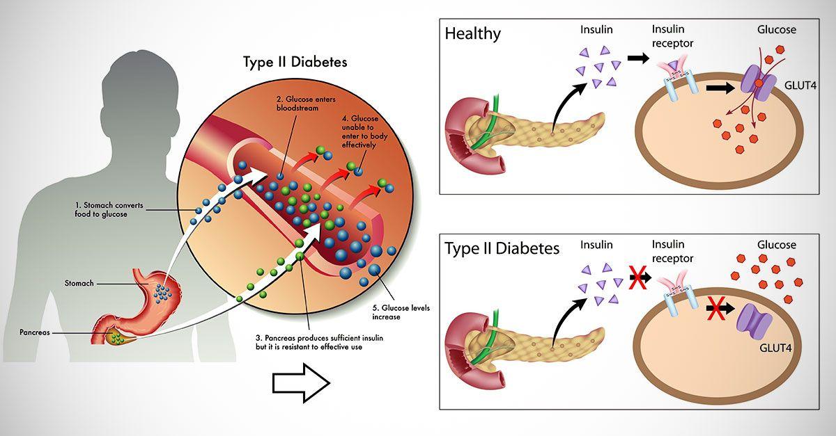 Как снизить инсулин чтобы похудеть:13 лучших способов