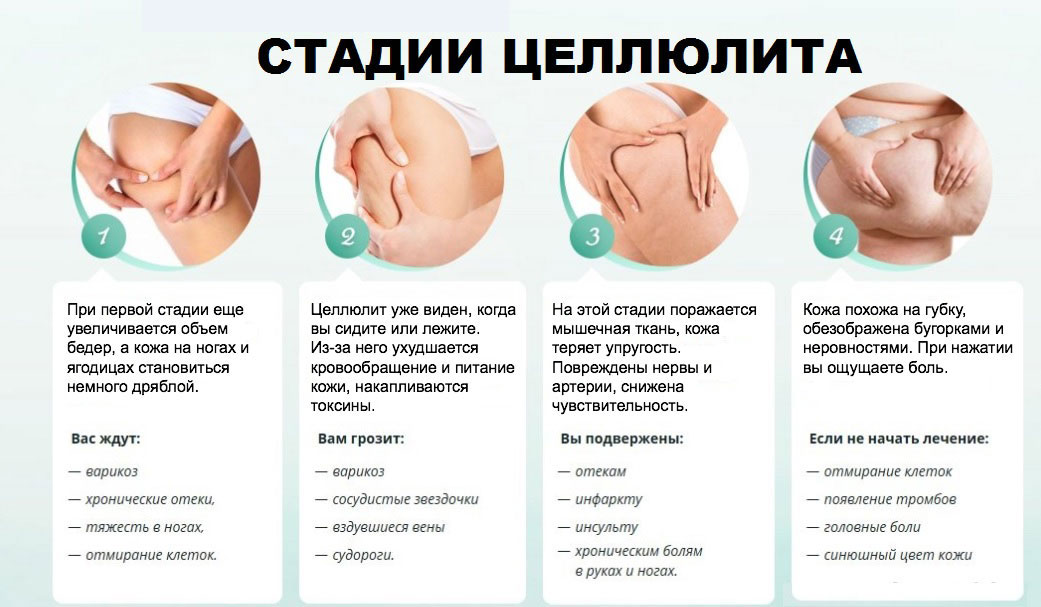 От чего появляется целлюлит: основные причины, симптомы