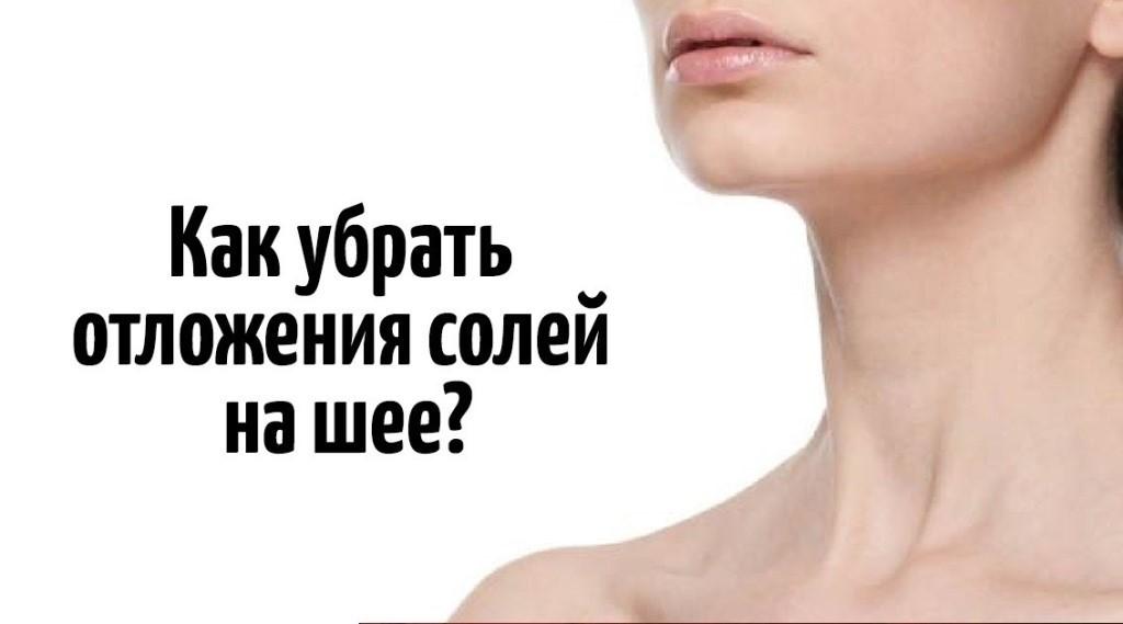 Опасно ли отложение солей в шее: причины, методы лечения