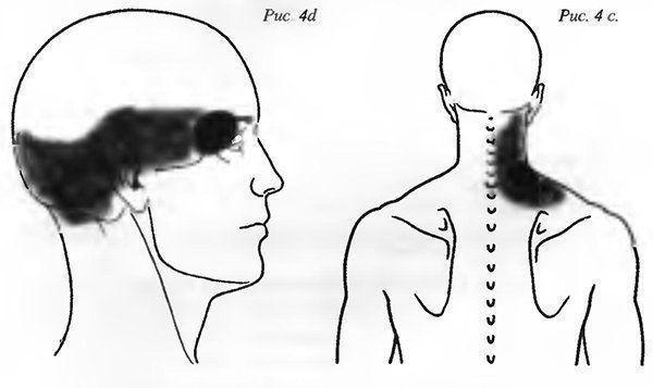 Из-за чего могут болеть мышцы головы?