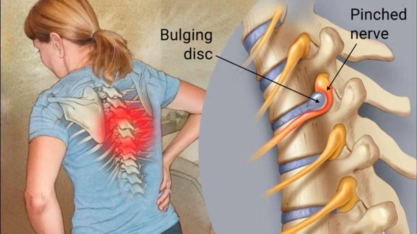 Ущемление нерва в грудном отделе позвоночника симптомы
