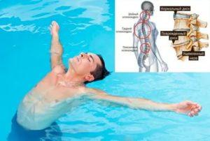 После плавания болит шея и голова