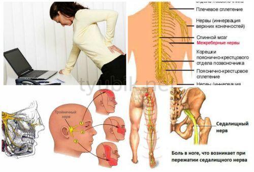 Защемление нерва в спине: симптомы, как снять боль, если защемило в пояснице