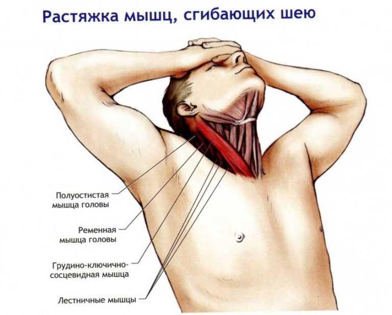 Миозит грудино ключично сосцевидной мышцы лечение