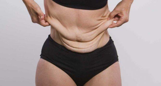 Как подтянуть кожу после похудения? (эффективные топ-ые способы)