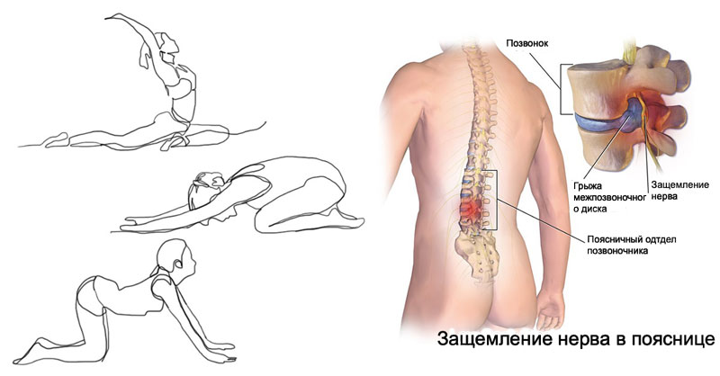 Защемление нерва в грудном отделе позвоночника: симптомы и лечение, что делать?