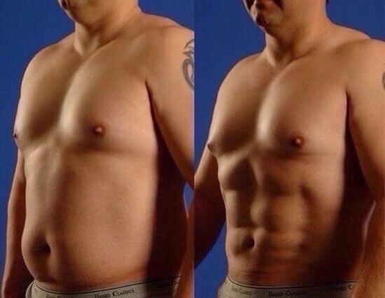 Как убрать жир с грудных мышц мужчине или о том, что делать с обвисшей грудью