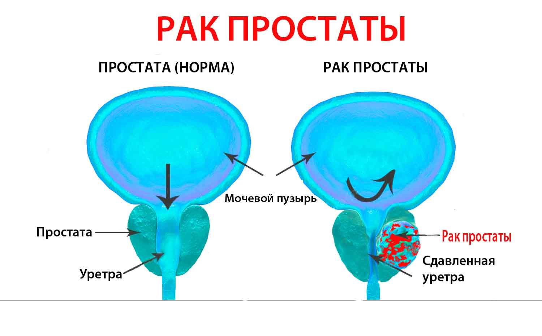 Дгпж 1 степени: что это такое, причины появления доброкачественной гиперплазии предстательной железы, симптомы и лечение - cureprostate.ru