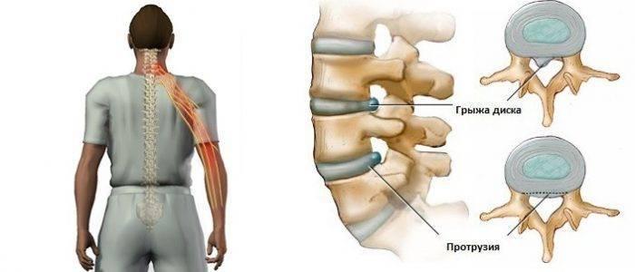 Защемление нерва в грудном отделе: причины и лечение