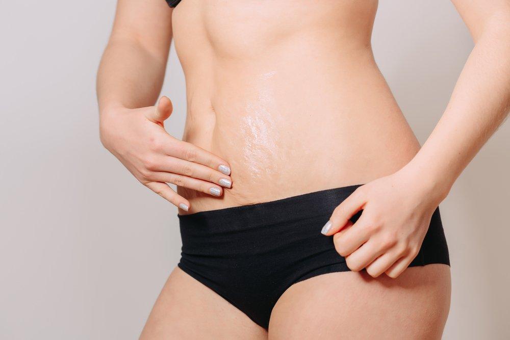 Как избавиться от растяжек на ногах, бедрах, ягодицах, животе, груди, спине?
