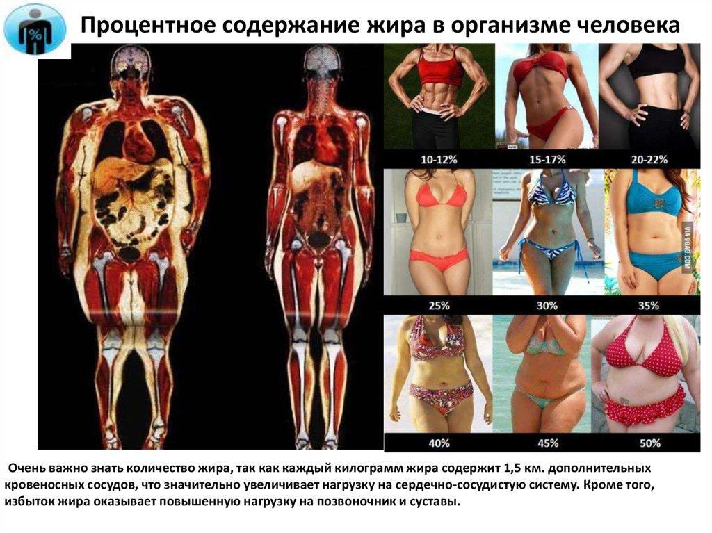 О чем расскажут жировые отложения в разных частях тела и как с этим бороться