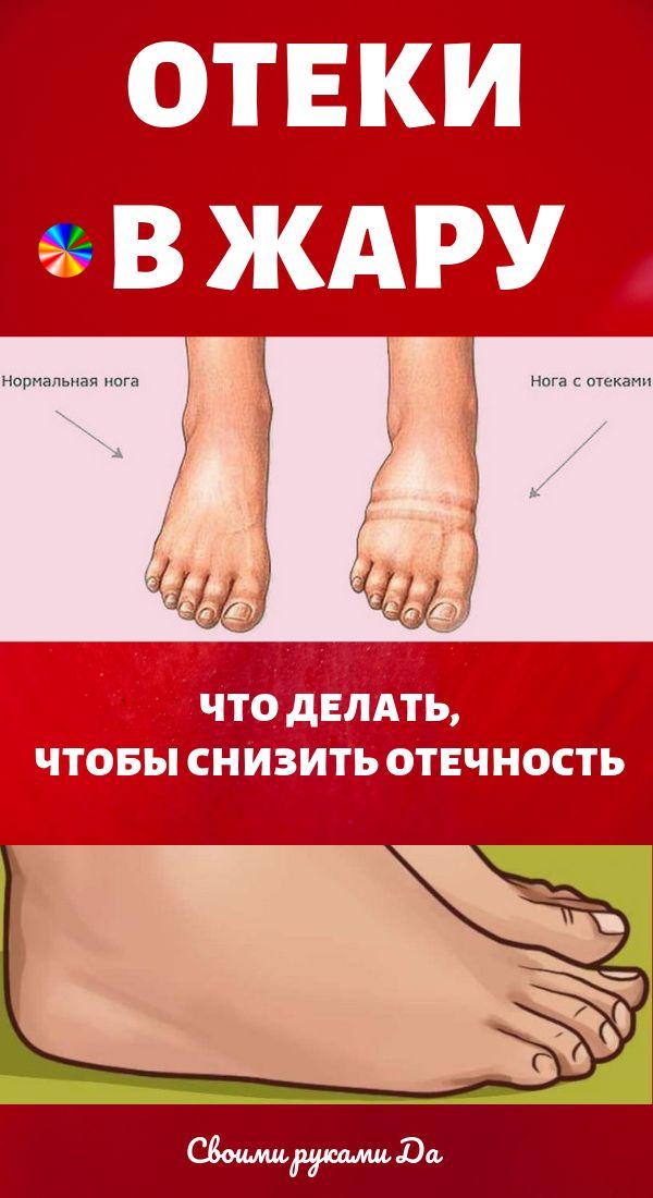Как снять отеки с ног в домашних условиях быстро народными средствами, причины отечности ног