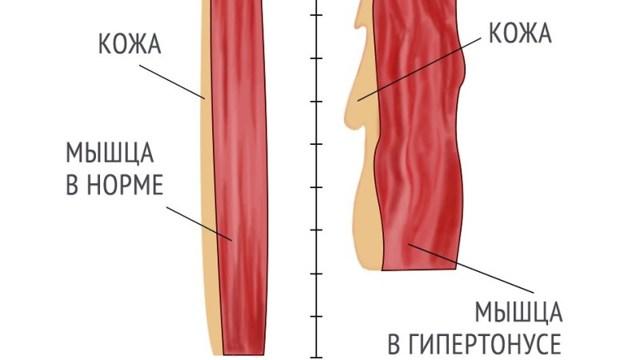 Почему не растут мышцы после тренировок?