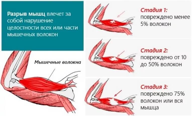 Лечение при растяжении мышц