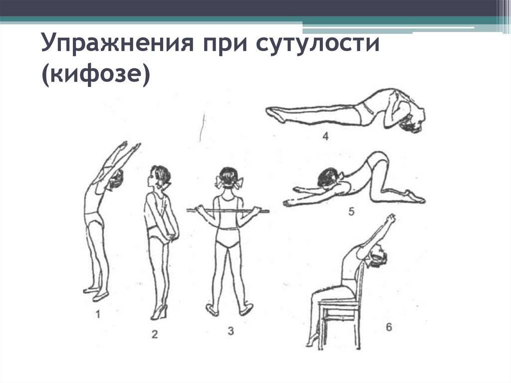 Упражнения при сколиозе позвоночника в домашних условиях