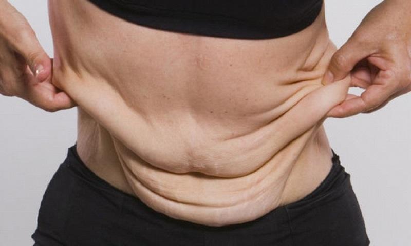 Как подтянуть кожу на лице и теле после похудения