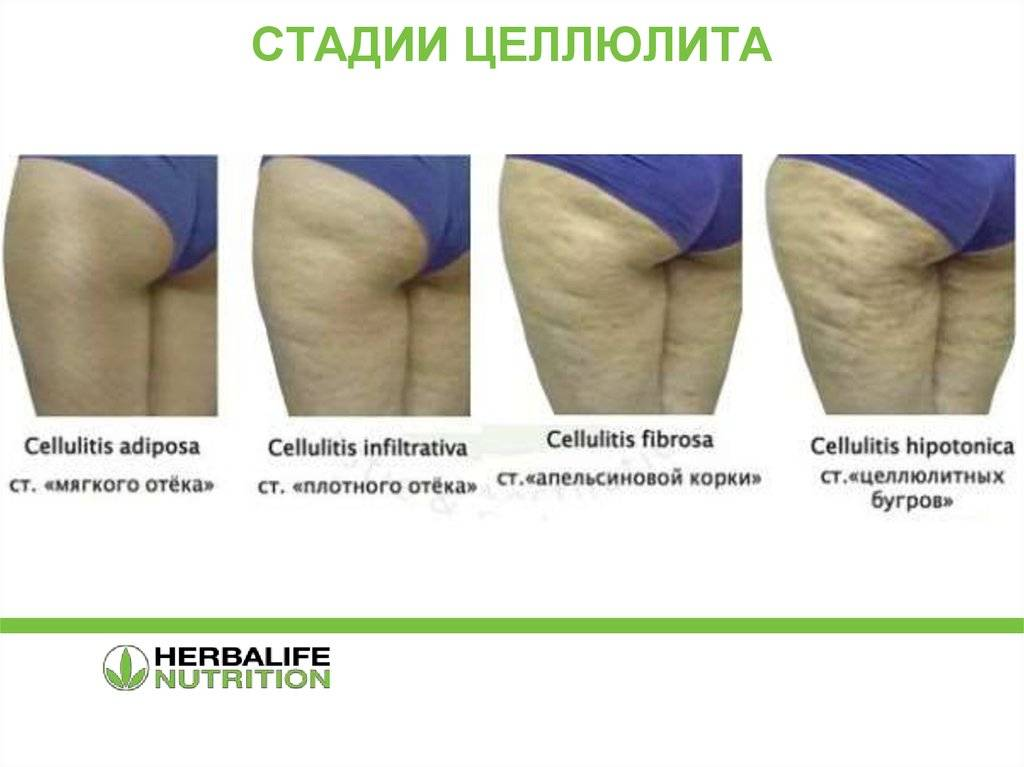 Как убрать целлюлит: массаж, крем, обертывания | lisa.ru