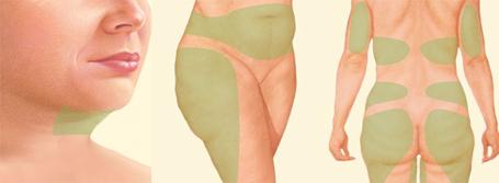Как устроена жировая ткань