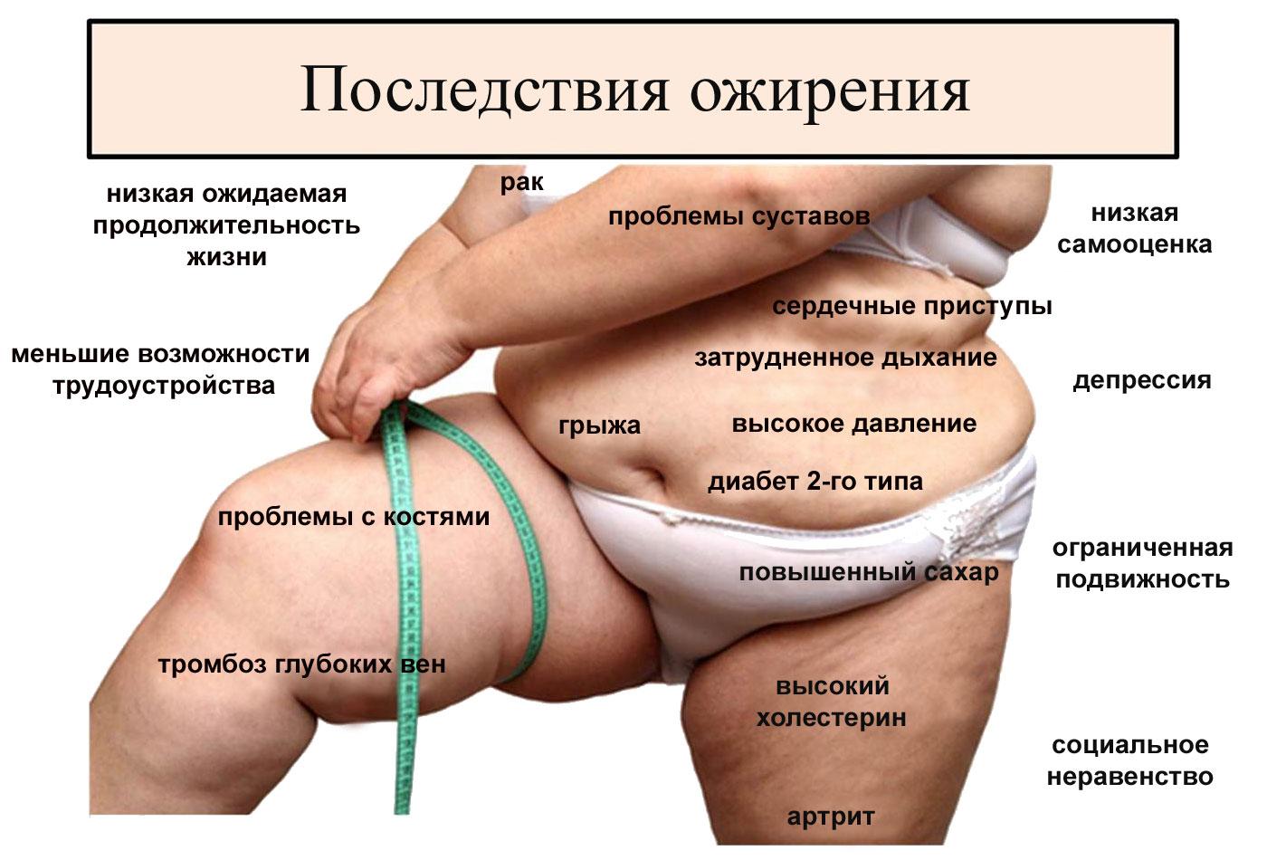 Степени ожирения у мужчин и женщин и рекомендации врача по лечению