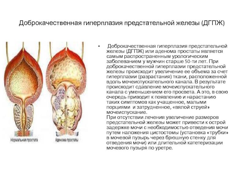 Симптомы и лечение аденомы простаты у мужчин препаратами, народными средствами