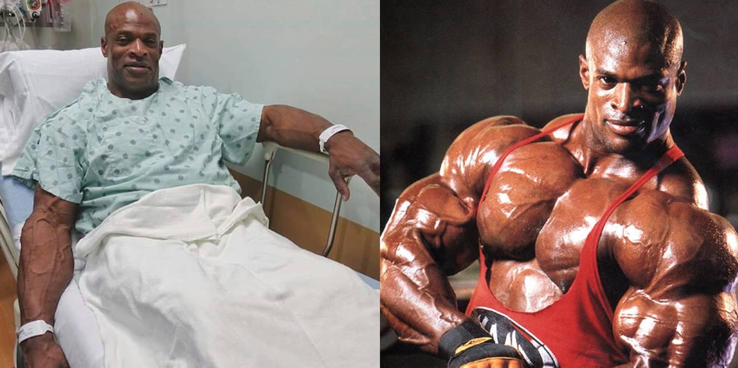Ронни колеман после операции.