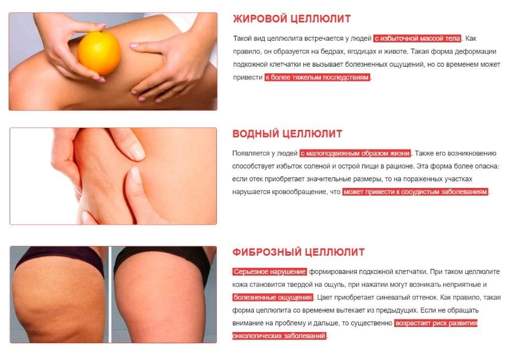 Основные причины возникновения целлюлита по всему телу. почему появляется целлюлит на теле и как от него избавиться