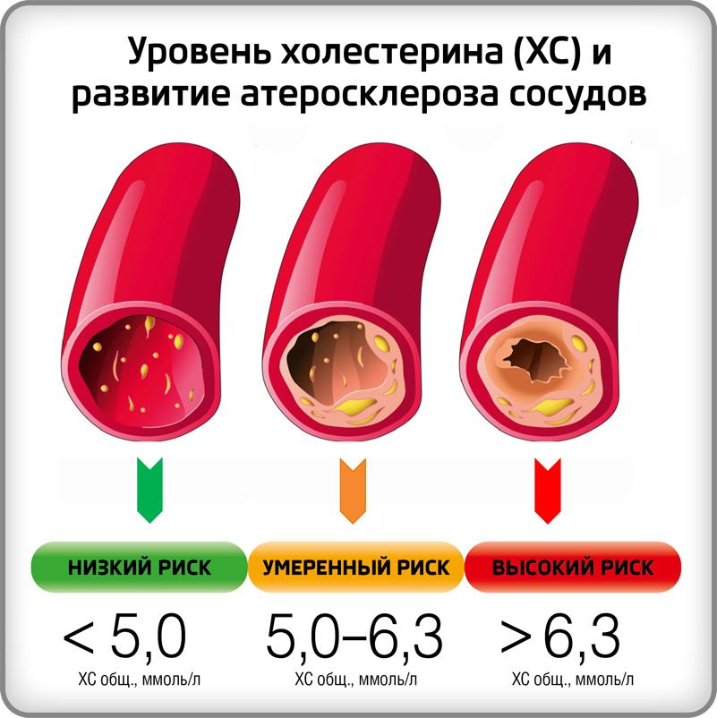 Общий уровень холестерина 5,0-5,9 ммоль/л — это нормально или много?