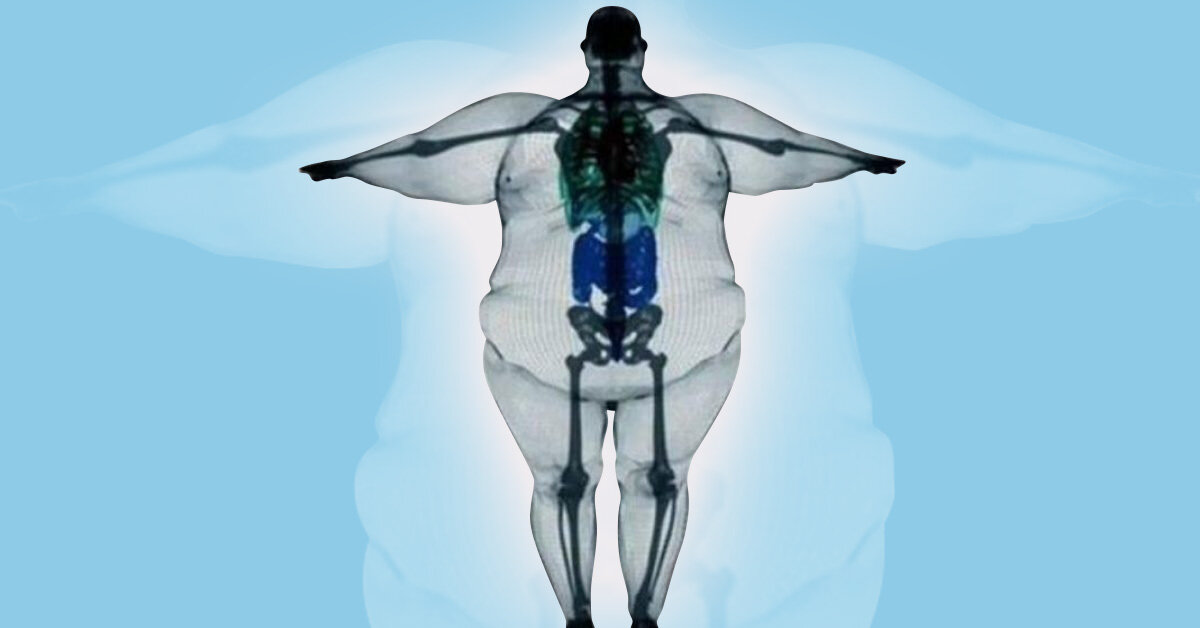 Могут ли быть тяжелые кости у человека?