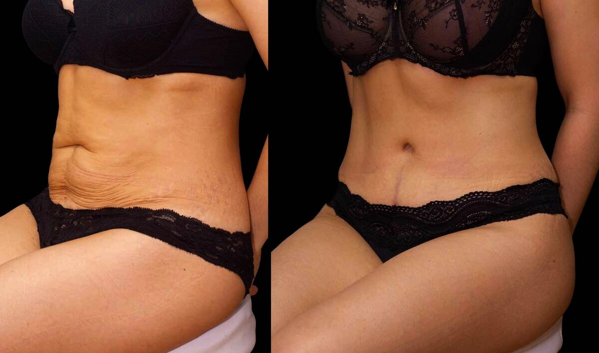 Как подтянуть кожу после похудения