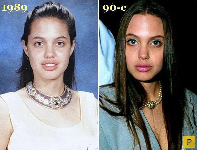Анджелина джоли – все пластические операции актрисы, фото до и после