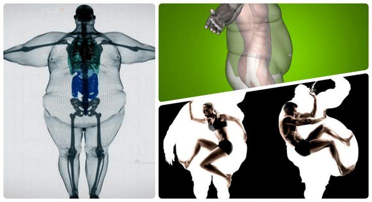 Самая сильная кость у человека. московские врачи нашли человека с самыми крепкими костями в мире. самая прочная кость в теле человека - лечение