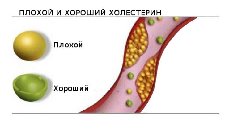 Продукты, понижающие холестерин в крови: передаем все нюансы