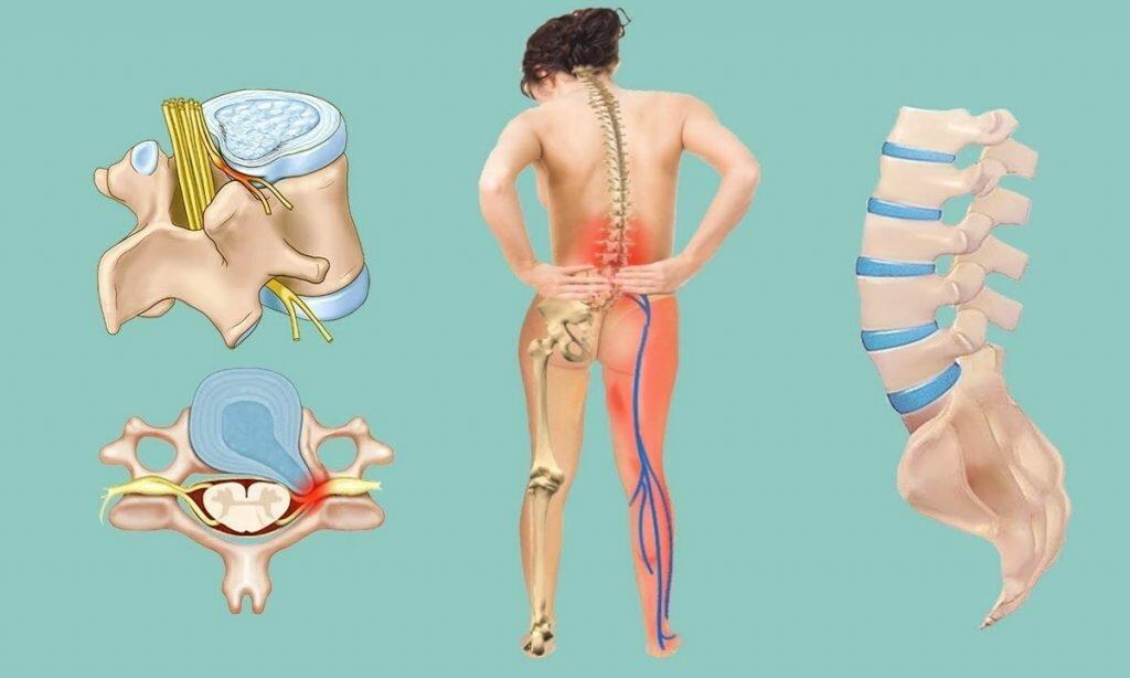 Какими симптомами проявляется защемление нерва в шейном отделе и можно ли его вылечить в домашних условиях