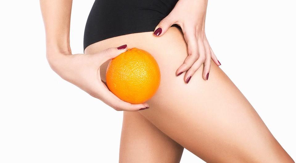 Стадии целлюлита – как распознать и лечить все этапы развития «апельсиновой корочки»?