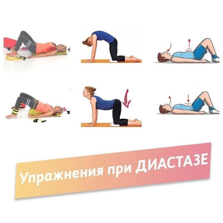 Упражнения при диастазе прямых мышц живота после родов, какие можно или нежелательно выполнять + видео