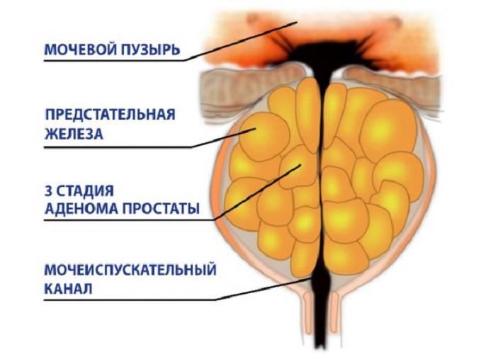 Простаторея: причины, симптомы и лечение дефекационной и микционной формы у мужчин
