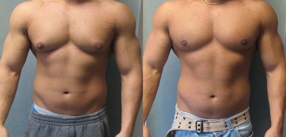 Негативные последствия злоупотребления стероидами: гинекомастия и почему она опасна